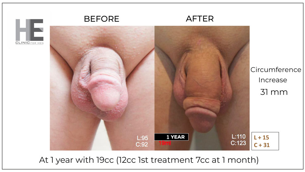 before and after penis filler