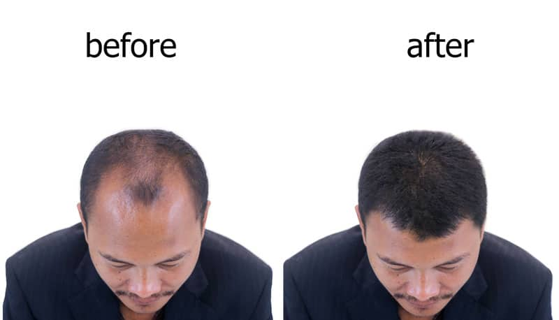 before an after FUE treatment at MECB bangkok