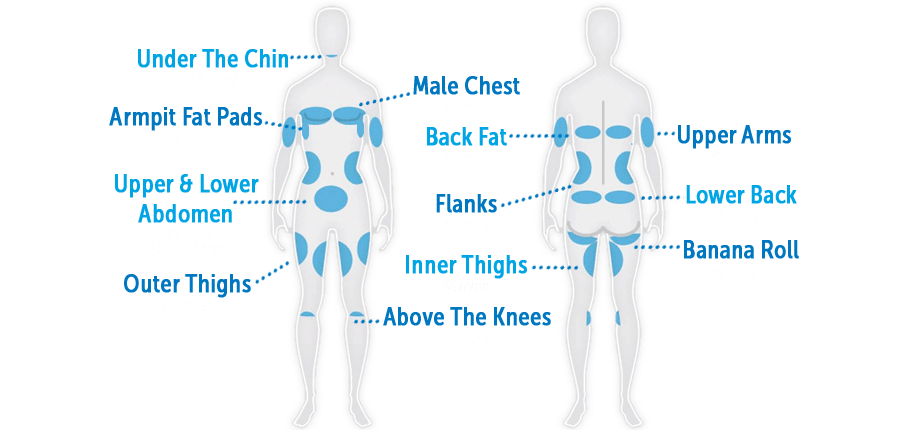 areas of fat that can be removed with fat freezing coolsculpting