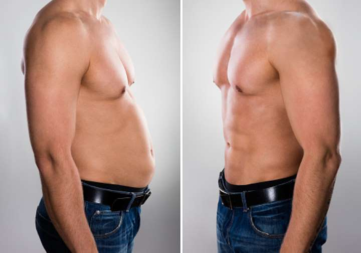 coolsculpting can reduce fat without liposuction